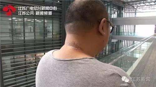 吴先生的后脖子上,还能看到一块明显的溃疡肿胀