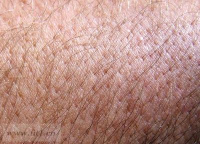 肺癌引起的皮肤症状