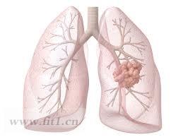 肺癌与高钙