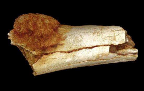 远古的癌症骨头