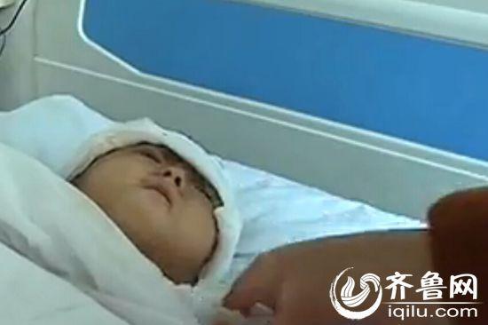6岁女孩患坏疽性脓皮病