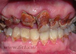 苏打水损害牙齿